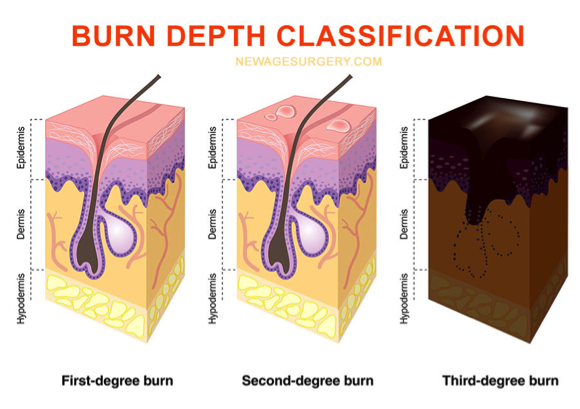 burn depth classification