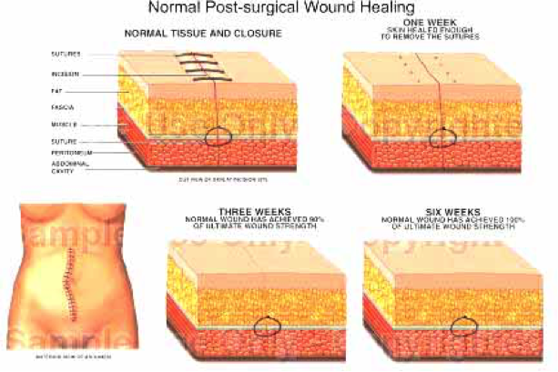 post surgical wound healing